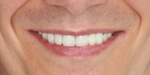 After Veneers & Crowns