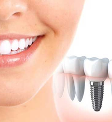 Dental Implants replace single or multiple teeth