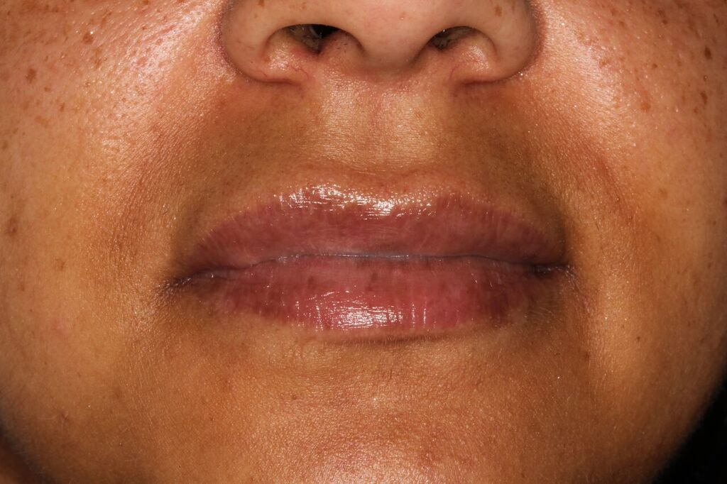 Lip filler example after