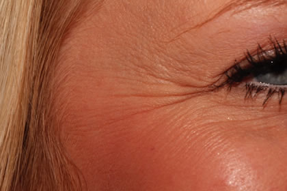 Crows feet example before