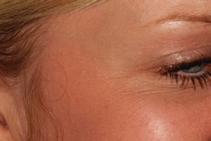 Crows feet example after