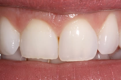 Crown Lengthening Example After